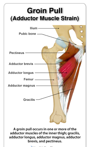 Groin And Adductor Strains In Ultimate Players Why It Happens And